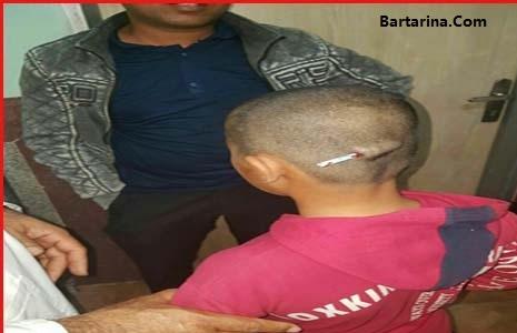 تنبیه دانش آموز توسط معلم در رودبار با فرو کردن مداد در سرش
