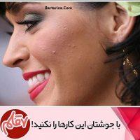 درمان سریع جوش صورت برای دید و بازدید عید نوروز ۹۶