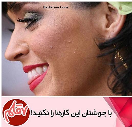 درمان سریع جوش صورت برای دید و بازدید عید نوروز 96