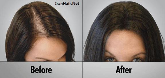 کاشت مو از سیر تا پیاز و هر آنچه که باید بدانید